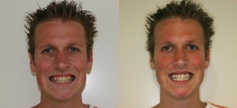 gevaren tanden bleken